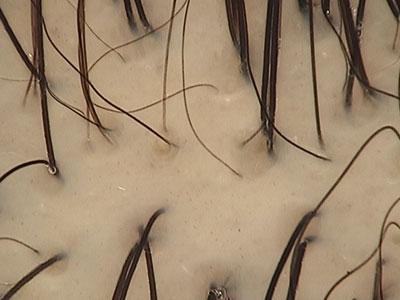 Alopecia Androgenetica Iniziale